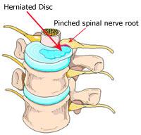 Mechanical Low Back Pain