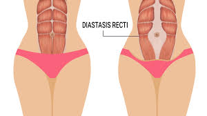 Abdominal Muscle Separation (Diastisis Recti)